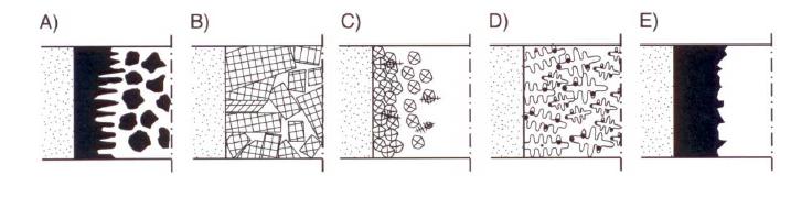 Bild 1: Erstarrungsmorphologie von Eisen-Kohlenstoff-Gusswerkstoffen:A) StahlgussB) Primärerstarrung von GusseisenC) naheutektisches GJLD) naheutektisches GJSE) eutektische Erstarrung von weißem Gusseisen (nach S. Engler)