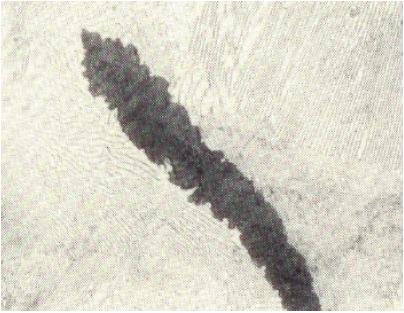 Bild 1: Grafitlamelle mit angelagertem Segregatgrafit, 500:1, geätzt