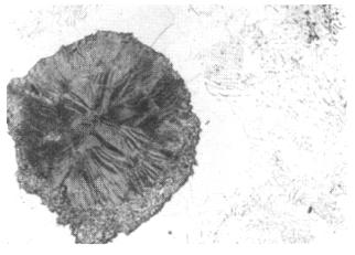 Bild 3: Segregatgrafit bei GJS, 100:1, geätzt