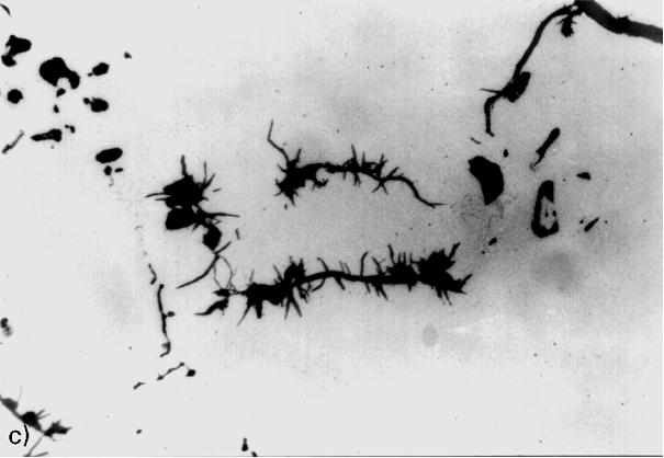 Bild 10: Grafitentartung bei Gusseisen mit Kugelgrafit durch erhöhte Bleikonzentration im behandelten Eisen. Die Störschwelle (Grenzkonzentration) ist offensichtlich bereits überschritten (Pb-Gehalt 0,006%), der schlagartige Abfall des Kugelausbildungsgrades ist zu erkennen. Auch Anzeichen zur Widmannstättenschen Anordnung sind deutlich zu sehen. Ursache war der Einsatz von verunreinigtem Kupferschrott als Legierungsmaterial, Vergrößerung 300:1