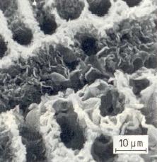Bild 1c: Feiner zusammenhängender D-Grafit um herausgelöste Dendriten, tiefgeätzt (10%ige alkohol. HCL)