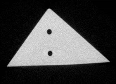 Bild 2: 2D-CT-Schichtbild