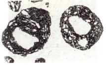 Bild 2: Dünnschliffaufnahme oolithisierter Quarzkörner