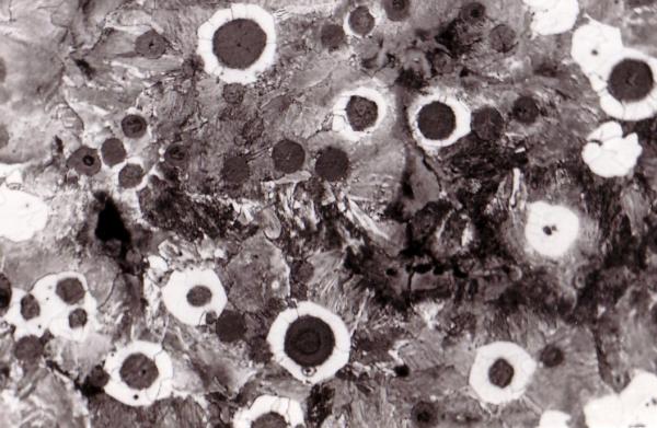 Fig. 1: Ferrite borders in nodular graphite cast iron, 100:1, 100:1, etched
