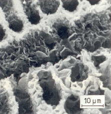 Fig. 1c: Fine, coherent D graphite around uncovered dendrites, deep etched (10% alcoholic HCL)