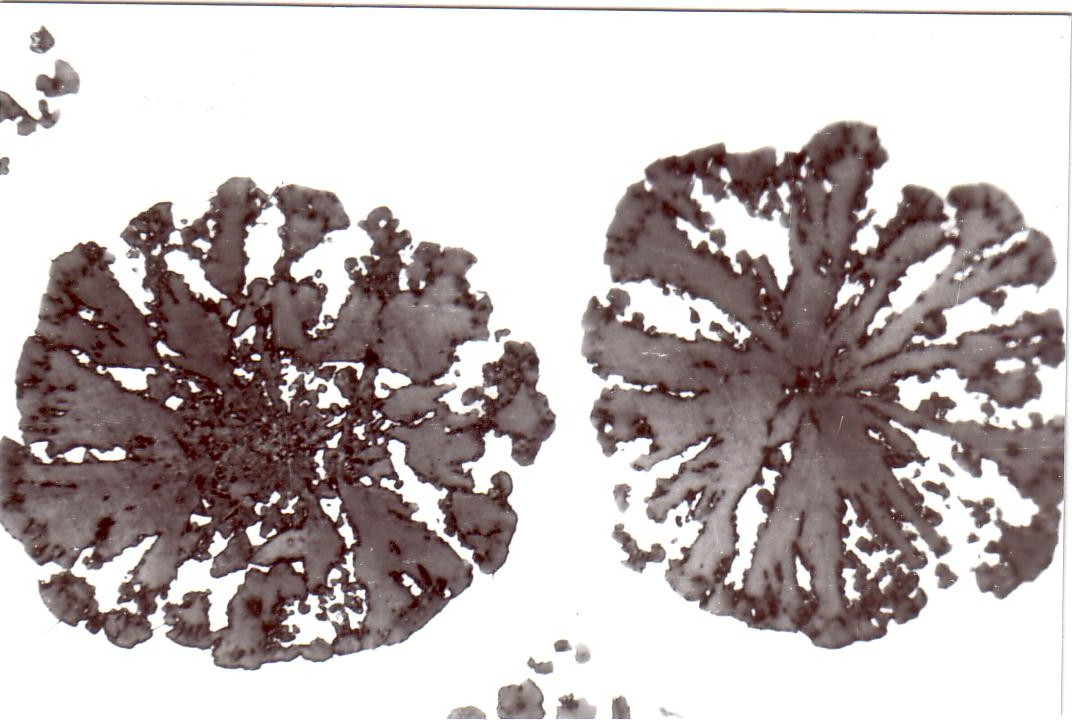 Figure 1: Excessive residual magnesium content results in faulty nodular formation (Mg = 0.065%), 300:1