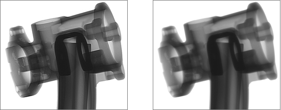 Fig. 1:HDI imaging, left with and right without HDI software (Bosello High Technology srl.)