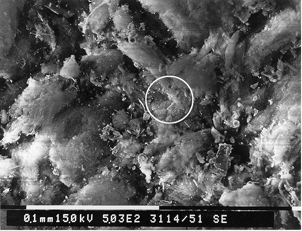 Bild 3: REM-Aufnahmen von weißem Belag (Quelle: FT&E)