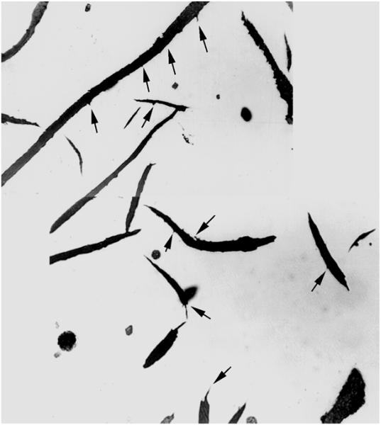 Bild 3: Widmannstätten-Graphit, spitze Fortsätze und leichter Saumbelag an den Grafitlamellen, ungeätzt, 500:1