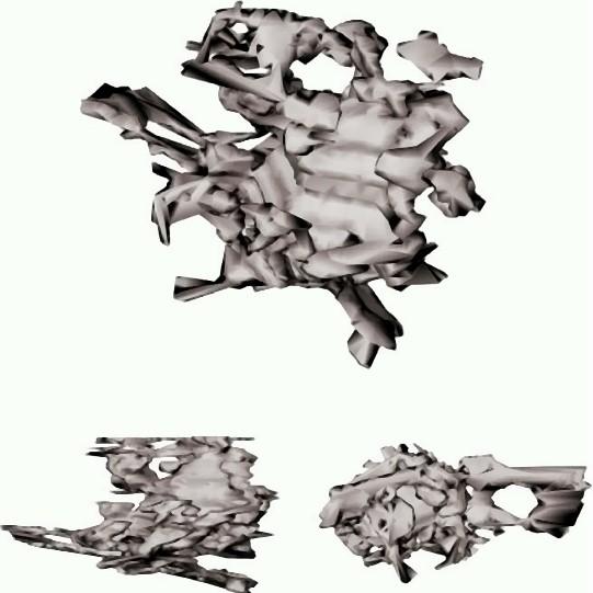 Bild 6: 3-dimensionale Rekonstruktion des Gefügebereiches aus Bild 4b, α-Al15(Fe,Mn3Si2-Knäuel in allen 3 Raumrichtungen (C. M. Dinnis et al.)
